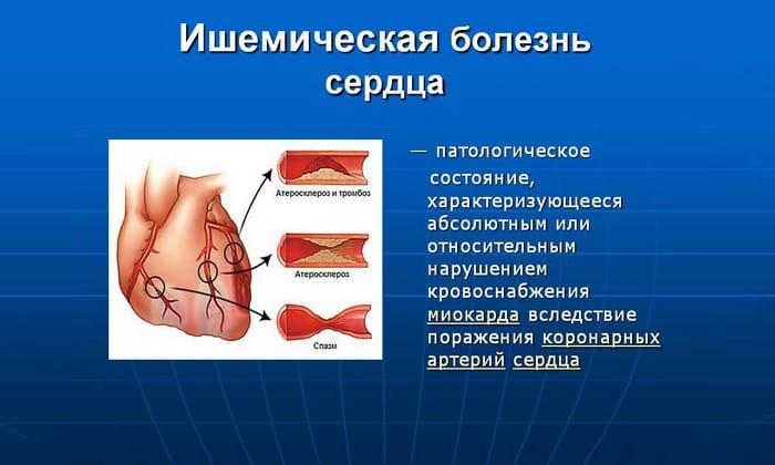 Препарат назначается при ишемической болезни сердца