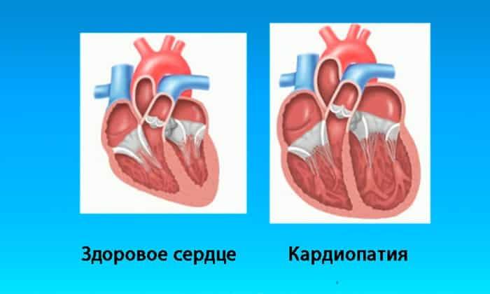 Препарат назначается при кардиопатии