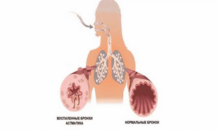 Прием Аспирина противопоказан при хронической астме