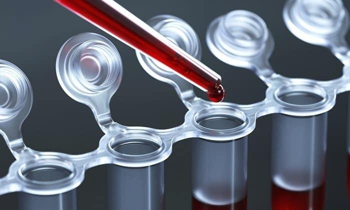 Если врач решил назначить данное лекарственное средство, нужно постоянно контролировать состояние пациента и показатели крови