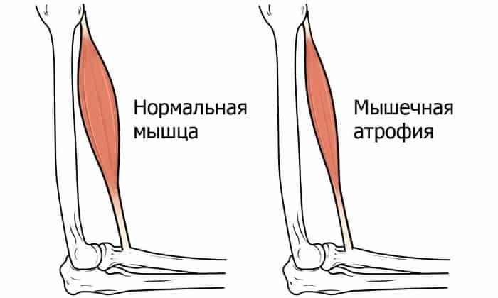 Мышечные атрофии лечат с использованием Тофизопама