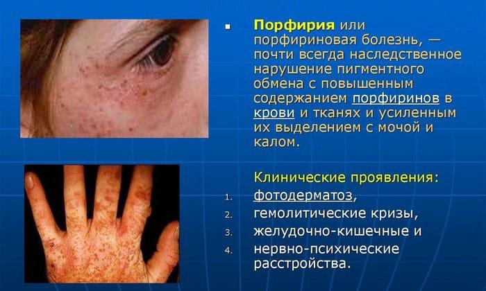 Гидроксизина Канон противопоказан при порфириновой болезни, сопровождающейся нервно-психическими нарушениями