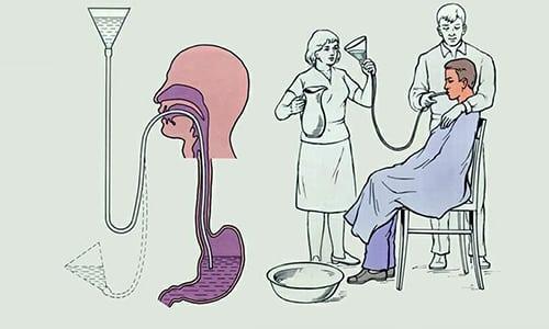 Если препарат был принят в слишком большой дозе, рекомендуется немедленное промывание желудка