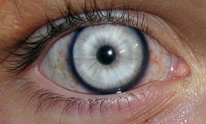 Нарушения глаз говорят о том, что препарат запрещен к употреблению