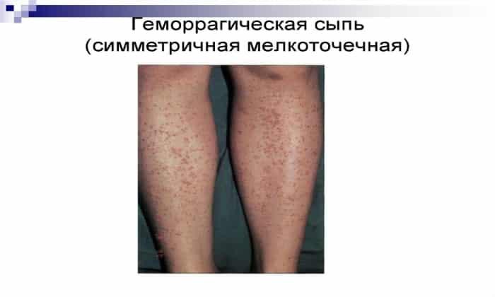 Прием Аспирина противопоказан при геморрагическом диатезе