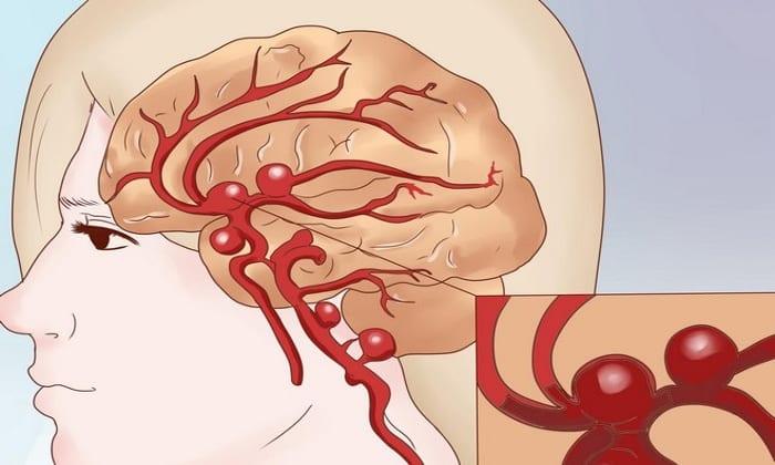 Аспирин применяют с целью профилактики эмболии сосудов головного мозга и тромбозов