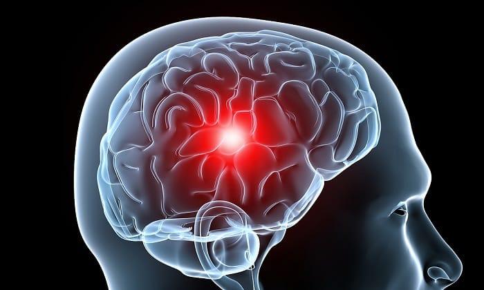Пирацетам назначают для лечения нарушения кровообращения головного мозга