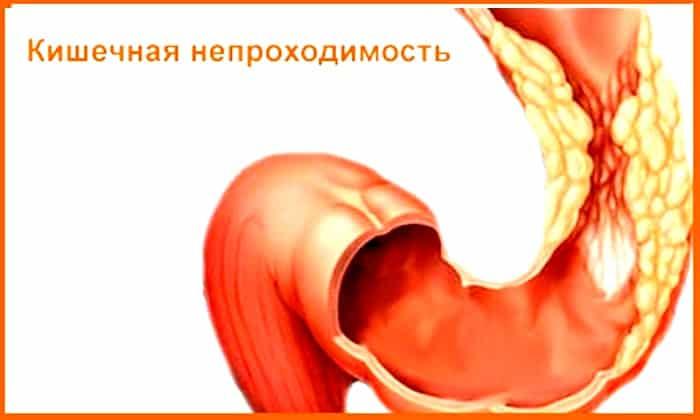 Смекту и Регидрон не назначают при кишечной непроходимости