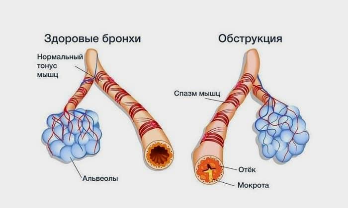 Лечение может спровоцировать спазмы бронхов