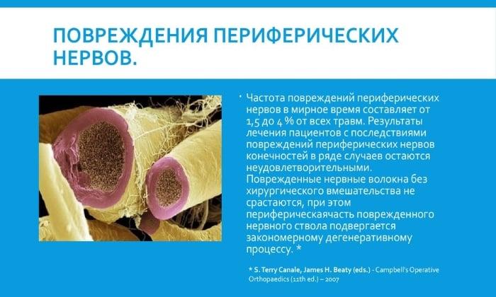 При передозировке препаратом возможно повреждение периферических нервов