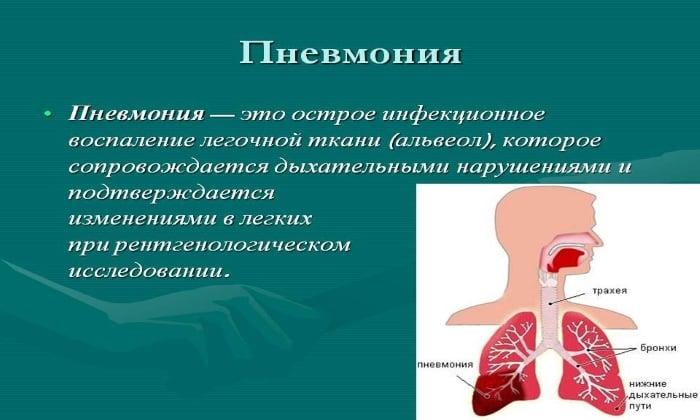 Препарат Трихопол применяют при воспалении легких