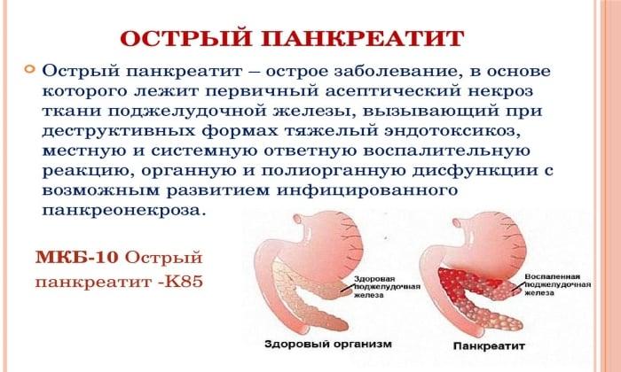 Метронидазол назначают при осложненном панкреатите