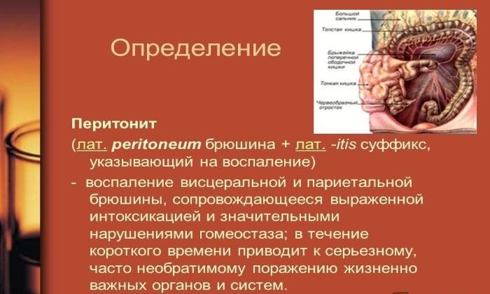 Препарат Трихопол применяют при перитоните